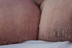 Cellulite giusta della gamba sul paziente femminile fotografia stock libera da diritti