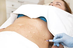Cellulite mesotherapy στοκ εικόνες