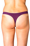 Cellulite and obesity Stock Image
