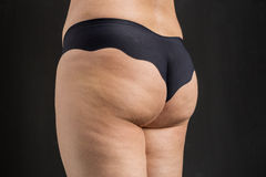 Cellulite problem concept, before and after Stock Photography