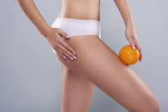 Cellulite is a problem Royalty Free Stock Images