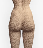 Cellulite  skin. Cellulite texture on the human skin (illustrationconcept Stock Photo