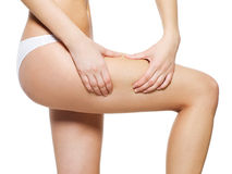 Cellulite skin on her legs stock photography