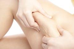 cellulite som visar kvinnabarn Fotografering för Bildbyråer