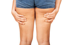 Cellulite of a teenage girl. Stock Image