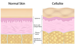 Cellulite versus smooth skin. Overgrowing fat cells pushing up the fibrous septaes creating dimple appearance in cellulite. Eps8, gradient and mesh printing Royalty Free Stock Photo