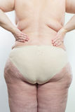 Cellulite Royalty Free Stock Photos