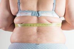 Cellulite Stock Image