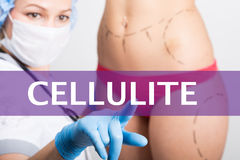 Cellulite written on a virtual screen. Internet technologies in medicine concept. medical doctor presses a finger on a Royalty Free Stock Photos