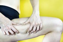 Cellulites, femmes montrant de grosses cellulites de cuisse, peau d'orange Photo stock