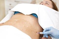 Celluliti mesotherapy fotografia stock