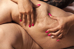 Cellulitis στοκ φωτογραφία με δικαίωμα ελεύθερης χρήσης