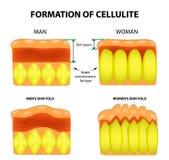 Celulite e envelhecimento da pele nos homens e nas mulheres Infographics Ilustração do vetor no fundo ilustração do vetor