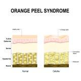 Celulitisów lub pomarańczowej łupy syndrom ilustracja wektor