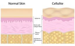Celulitis contra piel lisa stock de ilustración