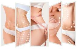 Celulitisu usunięcia plan Biali ocechowania na młodej kobiety ciele Zdjęcia Stock