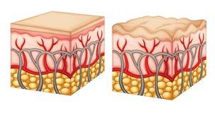 Celulitisy Obrazy Stock