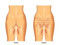 Celulitisy Fotografia Stock