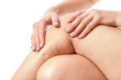 Celulitisy i luźna skóra obrazy royalty free