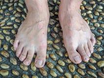 Cemento texturizado pavimentado con las piedras y masaje del pie Foto de archivo