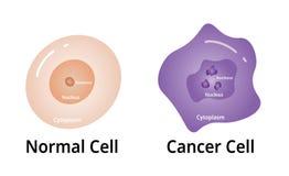 Cencer-Zelle, mit normaler Zelle vergleichen, Illustration Vektor vektor abbildung