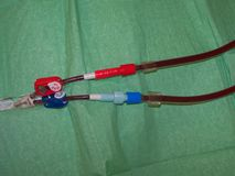 Central venous dialysis catheter closeup. Closeup of a central dialysis catheter in action Stock Image