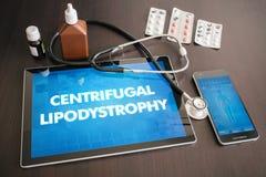 Centrifugaal lipodystrophy (huidziekte) medische diagnose vector illustratie