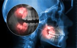 Cephalometric und Zahnschmerzenzoom anzeigend Stockbilder