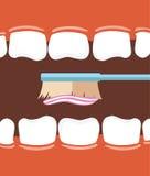 Cepillo de dientes con crema dental en boca abierta de par en par Imagen de archivo libre de regalías