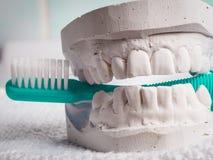 Cepillo de dientes verde con yeso dental Fotos de archivo libres de regalías