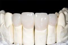 Ceramic crown. On gypsum model in laboratory Royalty Free Stock Photo
