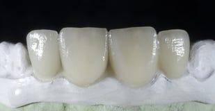 Ceramic crown. On gypsum model stock photo