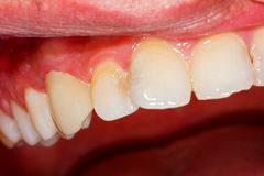 Ceramic crown on tooth Stock Image