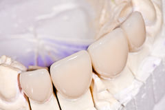 Ceramic Crowns Royalty Free Stock Images
