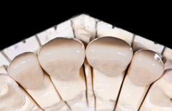 Ceramic Crowns Royalty Free Stock Photography