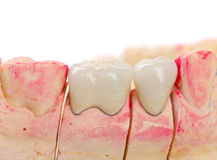 Ceramic crowns Royalty Free Stock Image