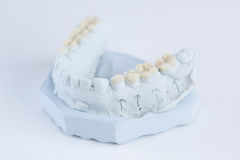 Ceramic crowns on a mold Royalty Free Stock Image