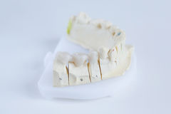 Ceramic crowns on a mold Stock Images