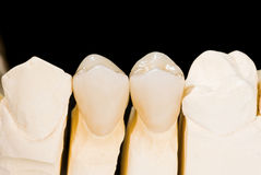 Ceramic crowns Royalty Free Stock Photos