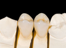 Ceramic crowns Stock Photos