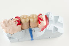 Ceramic crowns to try on a tooth model Stock Image