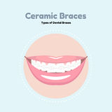 Ceramic Dental Braces. Royalty Free Stock Image