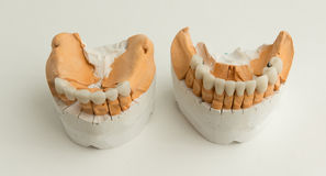 Ceramic dental crown Stock Image