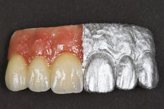 Ceramic front teeth and gums Stock Image
