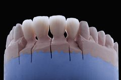 Ceramic teeth. On a plaster model with a totally black background Royalty Free Stock Photos