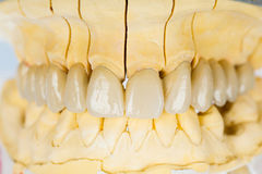 Ceramic teeth - dental bridge Stock Photography