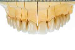 Ceramic teeth - dental bridge Royalty Free Stock Photo