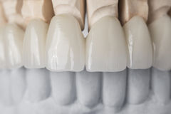 Ceramic teeth in the front. Close-up view of dental layout of upper row of teeth prothesis on artificial jaw, medical concept Stock Photos