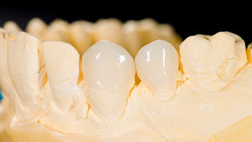 Ceramic veneers Stock Photos