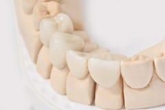 Ceramiczne korony Zdjęcie Stock